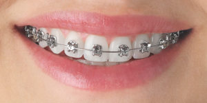 metal braces - orthodontic treatment